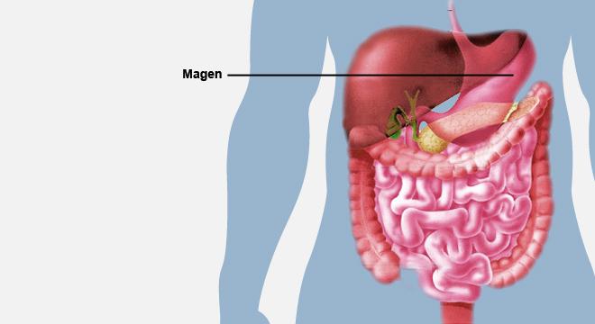 Magen Darm Infektion