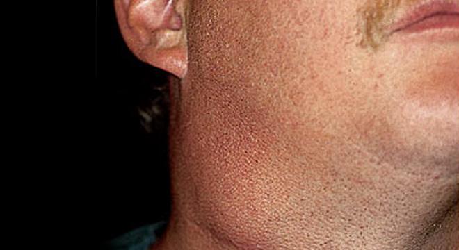 Pfeiffersches Drüsenfieber: akute Viruserkrankung