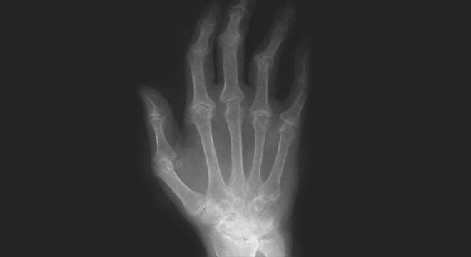Rheuma: Deformationen im Röntgenbild