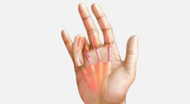 Schnellender Finger