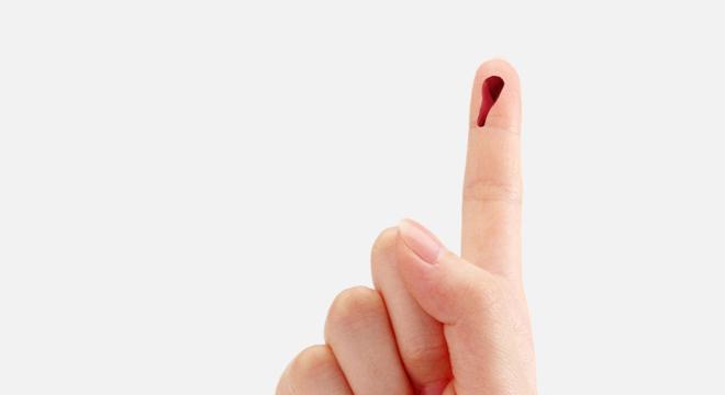 Bluterkrankheit: Bereits kleine Verletzungen bluten stark