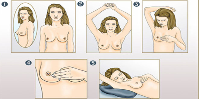 Brustkrebs: Regelmässige Selbstkontrollen