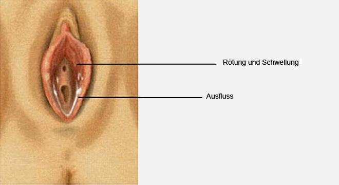 Scheidenentzündung, Vaginitis, Kolpitis