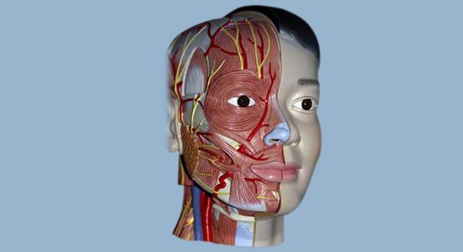 Fazialisparese: meist einseitige Gesichtslähmung