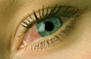 Auge rot Bindehaut