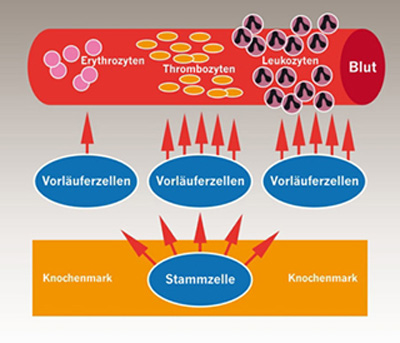 Gestörte Blutbildung im Knochenmark