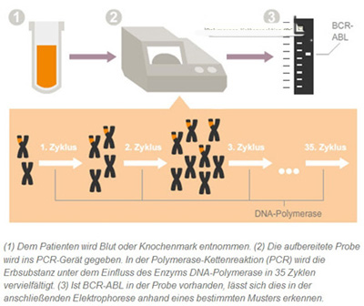 Die PCR Methode