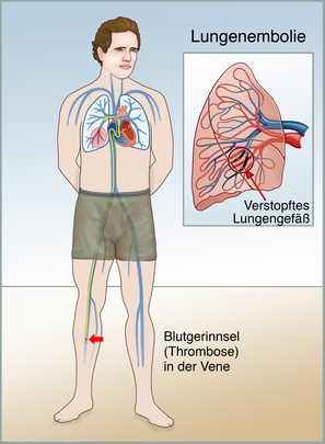 Thrombose oder Embolie