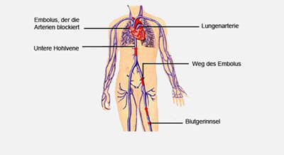 Blutgerinnung Kreislauf